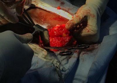 20 - Neck Mass Removal Surgery